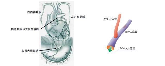 冠動脈バイパス術について   熊本大学心臓血管外科